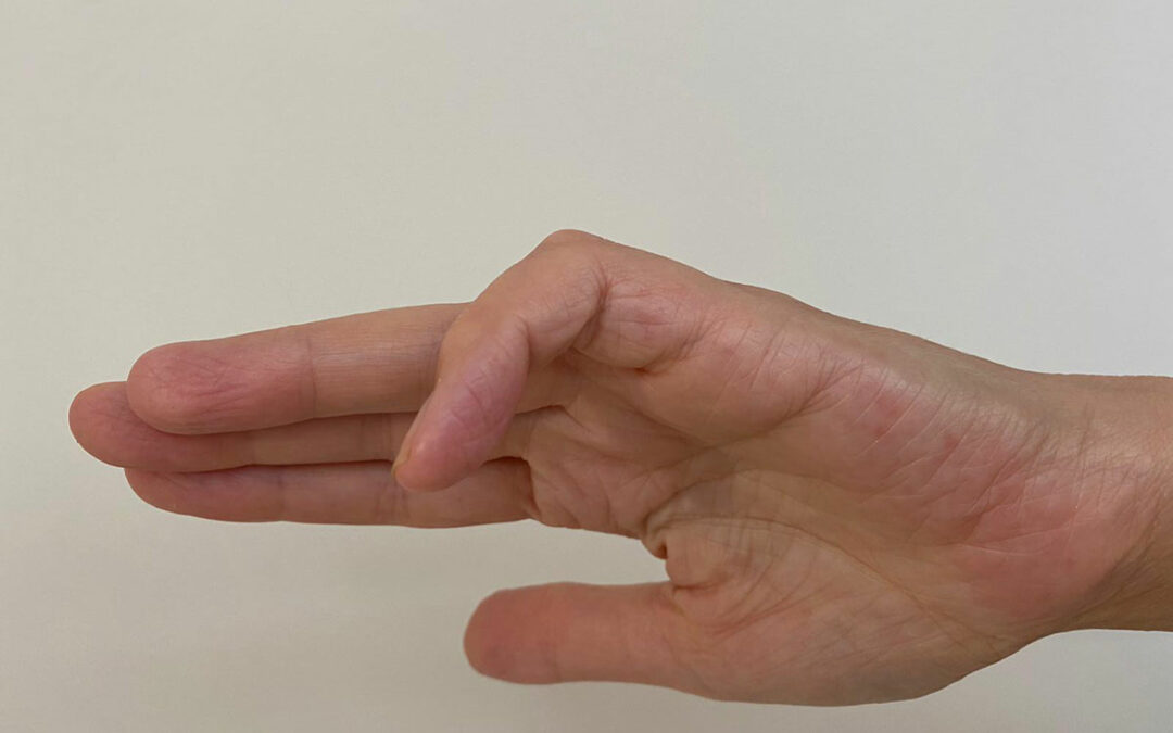 Crooked finger straightens